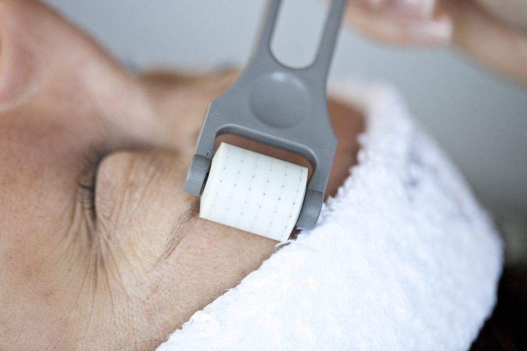 Collagen Therapy / Skin Needling - Glam Beauty Salon